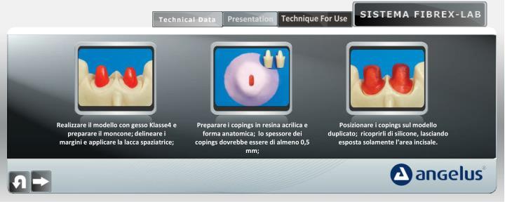 Realizzare il modello con gesso Klasse4 e preparare il moncone; delineare i margini e applicare la lacca spaziatrice;