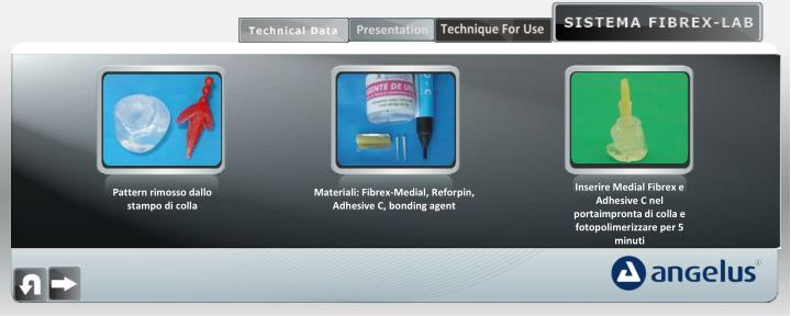 Inserire Medial Fibrex e Adhesive C nel portaimpronta di colla e fotopolimerizzare per 5 minuti