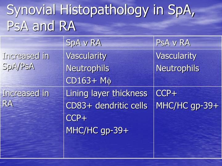 Synovial Histopathology in SpA, PsA and RA