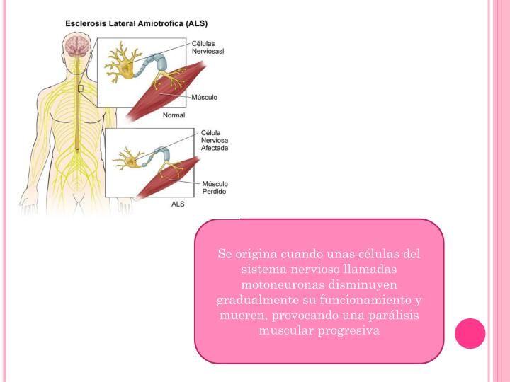 Se origina cuando unas células del sistema nervioso llamadas motoneuronas disminuyen gradualmente su funcionamiento y mueren, provocando una parálisis muscular progresiva