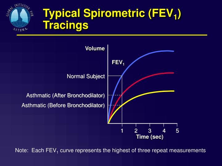 Typical Spirometric (FEV