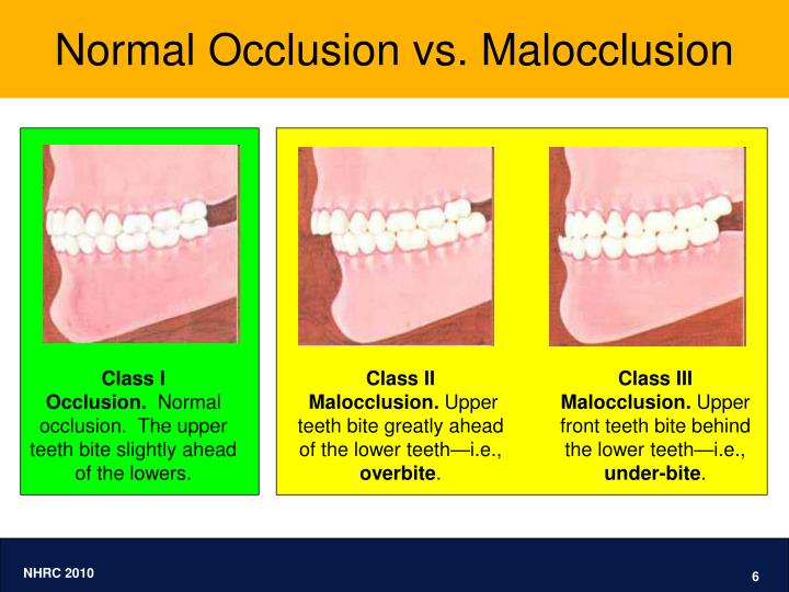 Normal Occlusion vs. Malocclusion