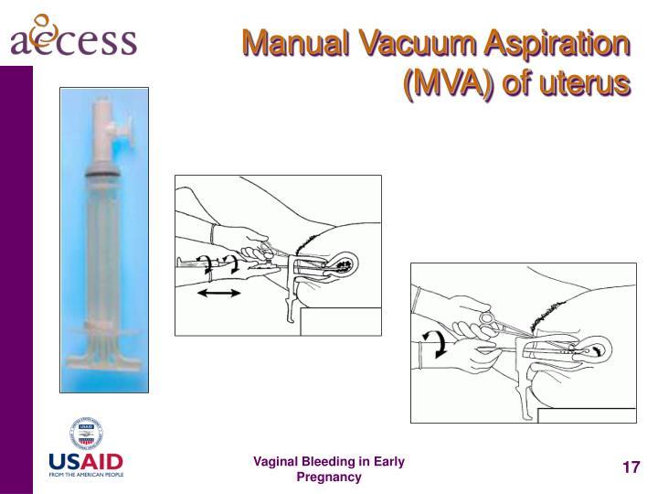 Manual Vacuum Aspiration (MVA) of uterus