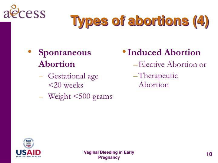 Spontaneous Abortion