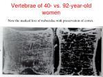 vertebrae of 40 vs 92 year old women