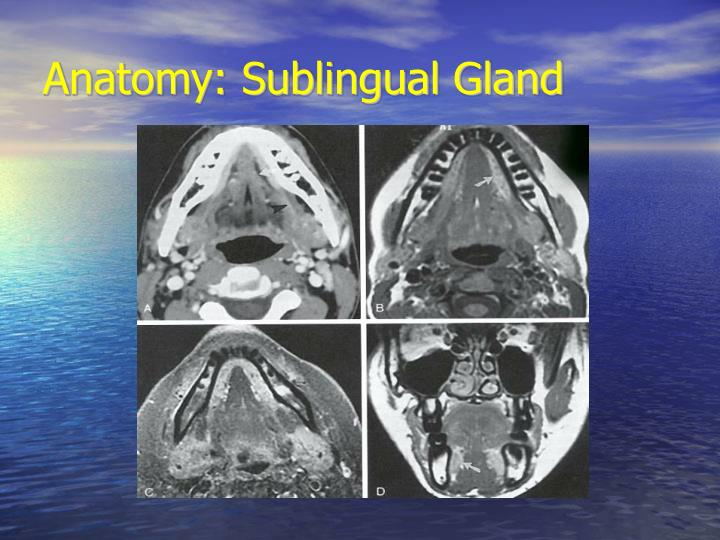 Anatomy: Sublingual Gland