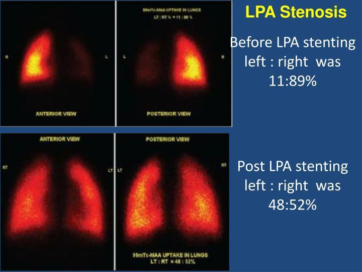 LPA Stenosis