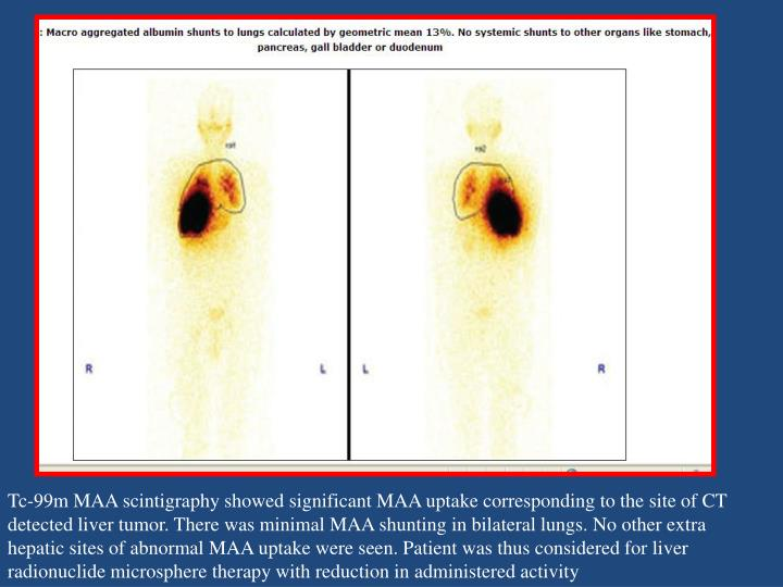 Tc-99m MAA scintigraphy showed significant MAA uptake corresponding to the site of CT detected liver tumor. There was minimal MAA shunting in bilateral lungs. No other extra hepatic sites of abnormal MAA uptake were seen. Patient was thus considered for liver radionuclide microsphere therapy with reduction in administered activity