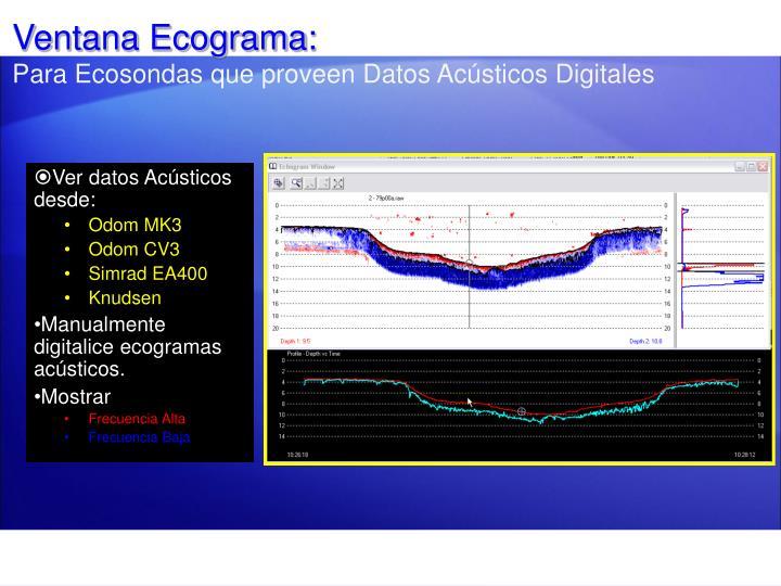 Ventana Ecograma: