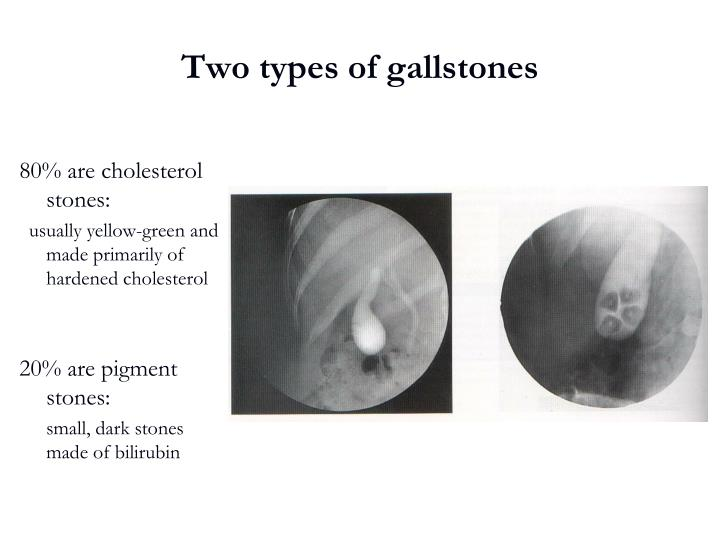 Two types of gallstones