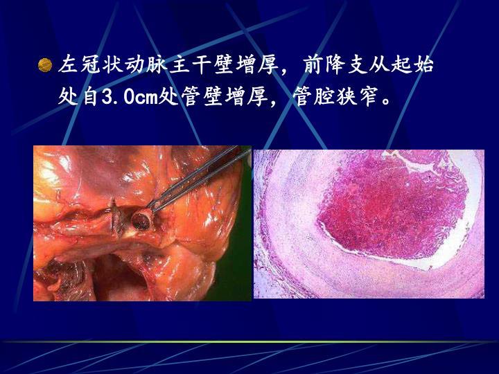 左冠状动脉主干壁增厚,前降支从起始处自3.0