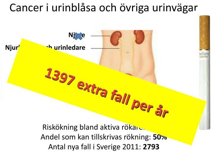Cancer i urinblåsa och övriga urinvägar
