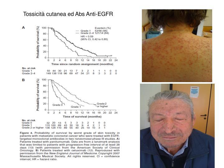 Tossicità cutanea ed Abs Anti-EGFR