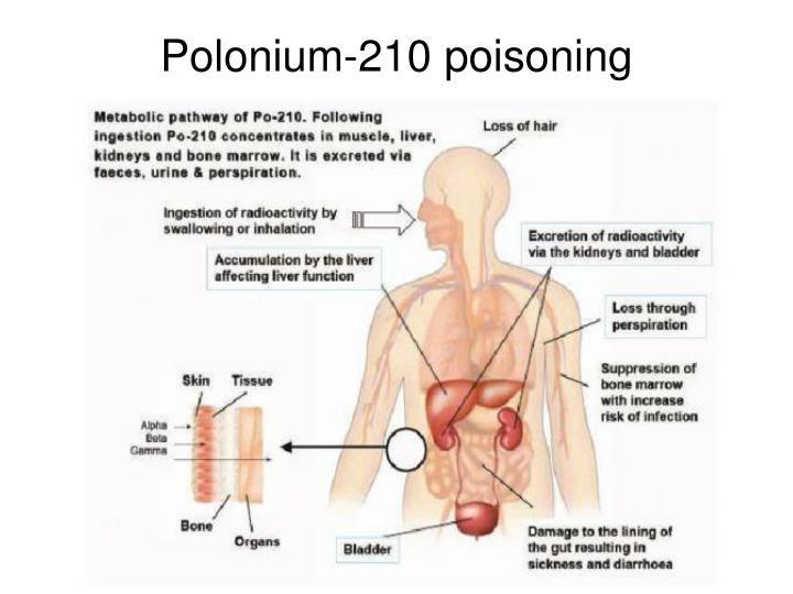 Polonium-210 poisoning