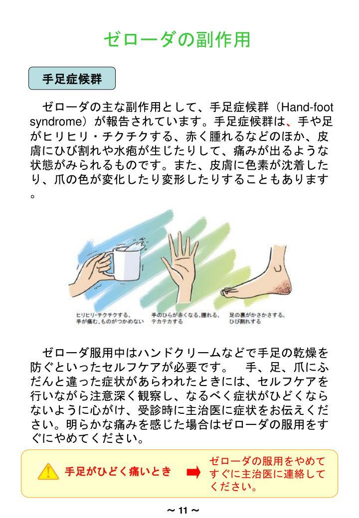 手足症候群