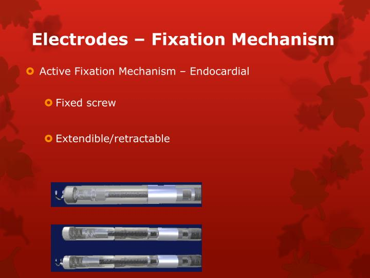 Electrodes – Fixation Mechanism