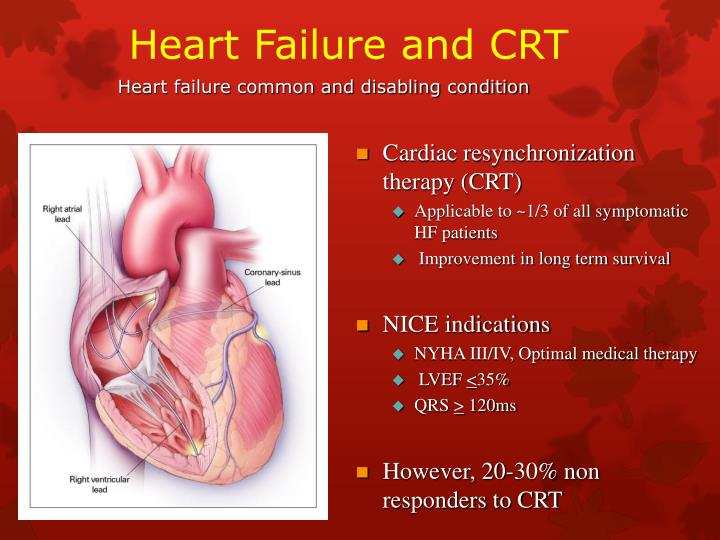 Heart Failure and CRT