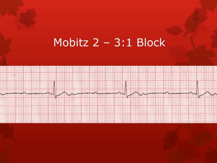 Mobitz 2 – 3:1 Block