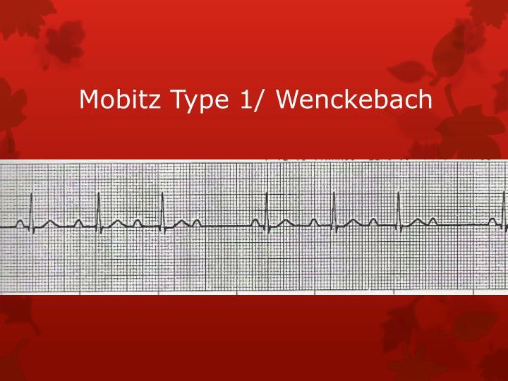 Mobitz Type 1/ Wenckebach