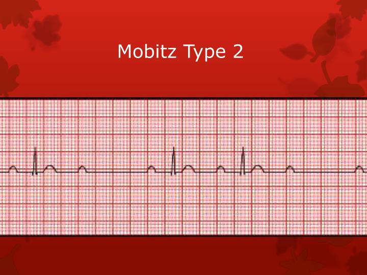 Mobitz Type 2