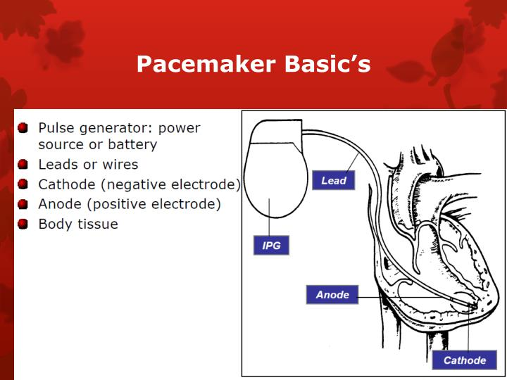 Pacemaker Basic's