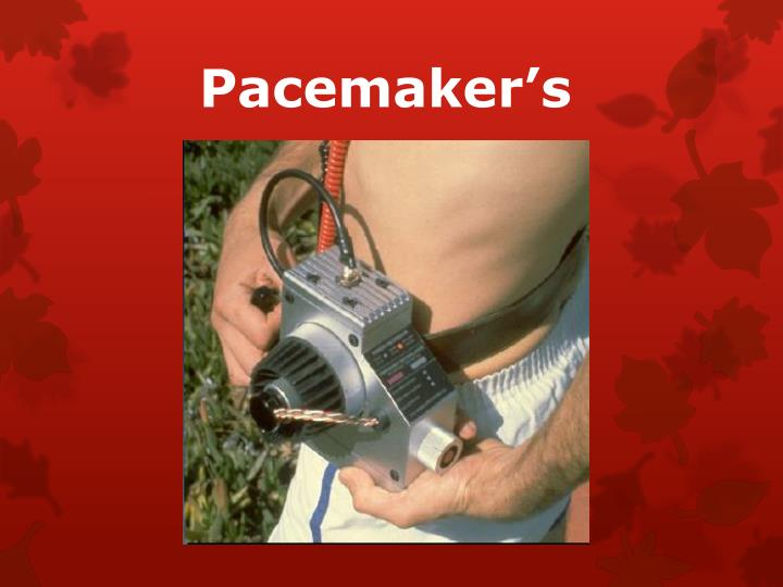 Pacemaker's