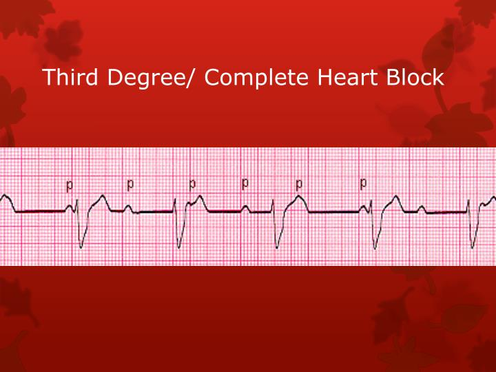 Third Degree/ Complete Heart Block