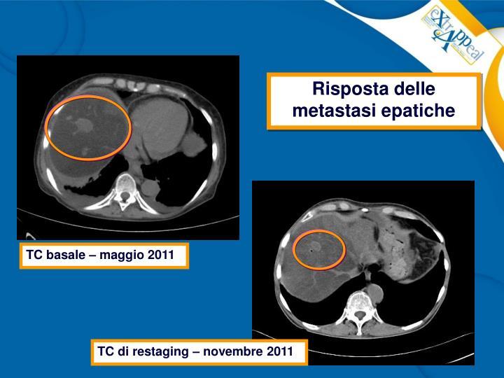 Risposta delle metastasi epatiche