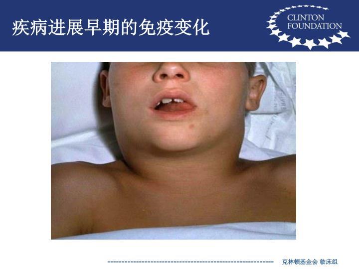 疾病进展早期的免疫变化