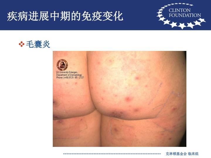 疾病进展中期的免疫变化