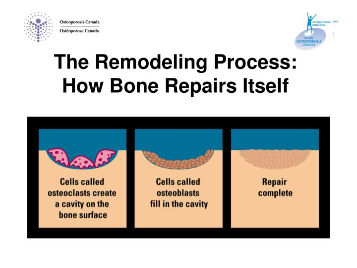 The Remodeling Process:     How Bone Repairs Itself