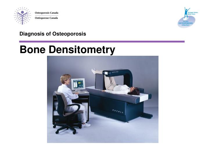 Diagnosis of Osteoporosis