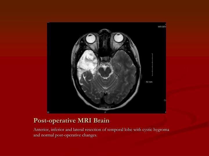 Post-operative MRI Brain