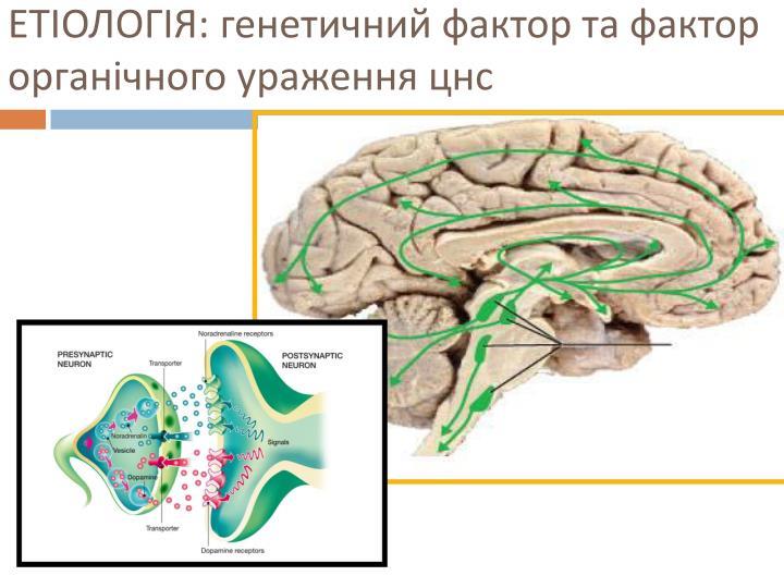 ЕТІОЛОГІЯ: генетичний фактор та фактор органічного ураження цнс