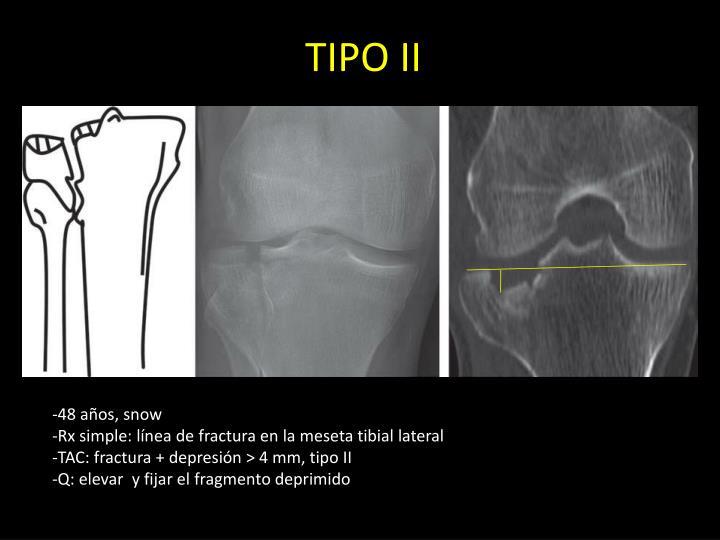 TIPO II