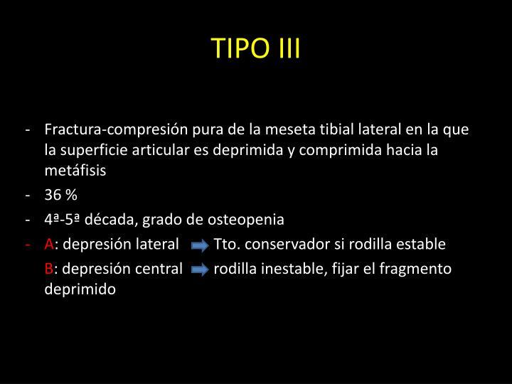 TIPO III
