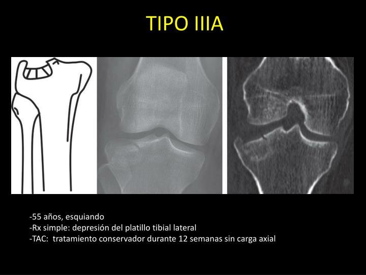TIPO IIIA