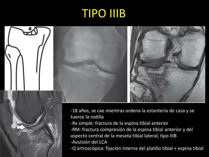 TIPO IIIB