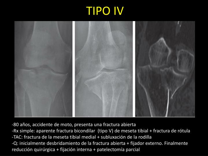 TIPO IV