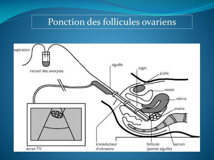 Ponction des follicules ovariens