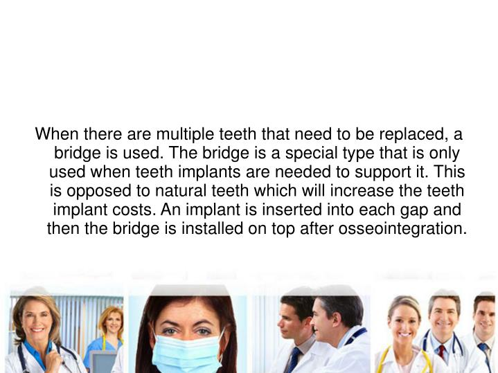 When there are multiple teeth that need to be replaced, a bridge is used. The bridge is a special type that is only used when teeth implants are needed to support it. This is opposed to natural teeth which will increase the teeth implant costs. An implant is inserted into each gap and then the bridge is installed on top after osseointegration.