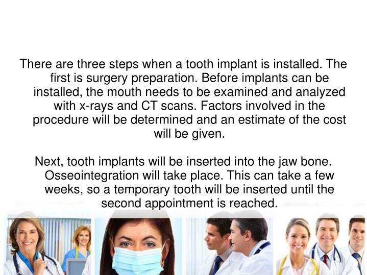 There are three steps when a tooth implant is installed. The first is surgery preparation. Before implants can be installed, the mouth needs to be examined and analyzed with x-rays and CT scans. Factors involved in the procedure will be determined and an estimate of the cost will be given.