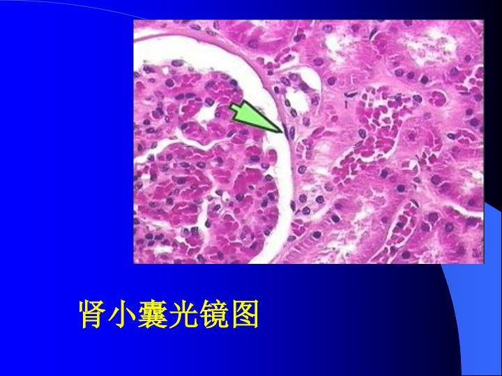肾小囊光镜图