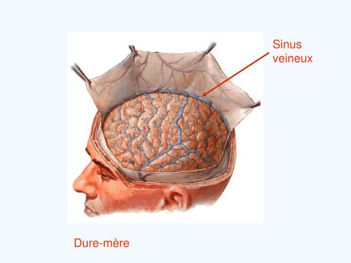 Sinus veineux