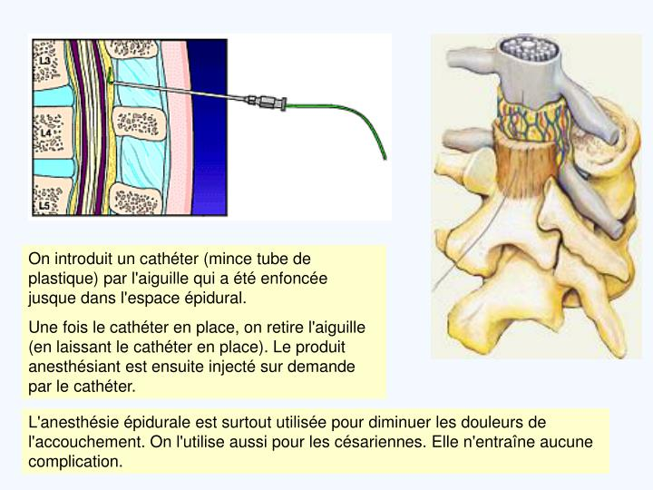 On introduit un cathéter (mince tube de plastique) par l'aiguille qui a été enfoncée jusque dans l'espace épidural.