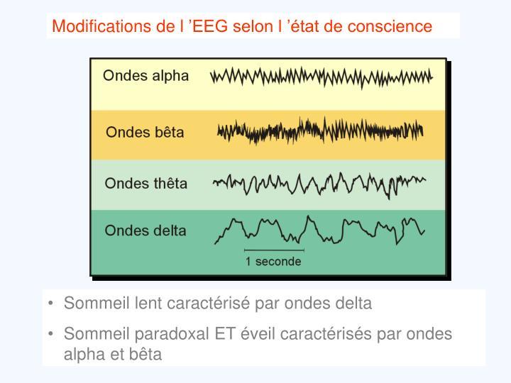 Modifications de l'EEG selon l'état de conscience