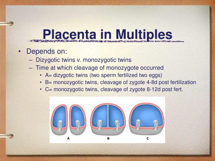 Placenta in Multiples