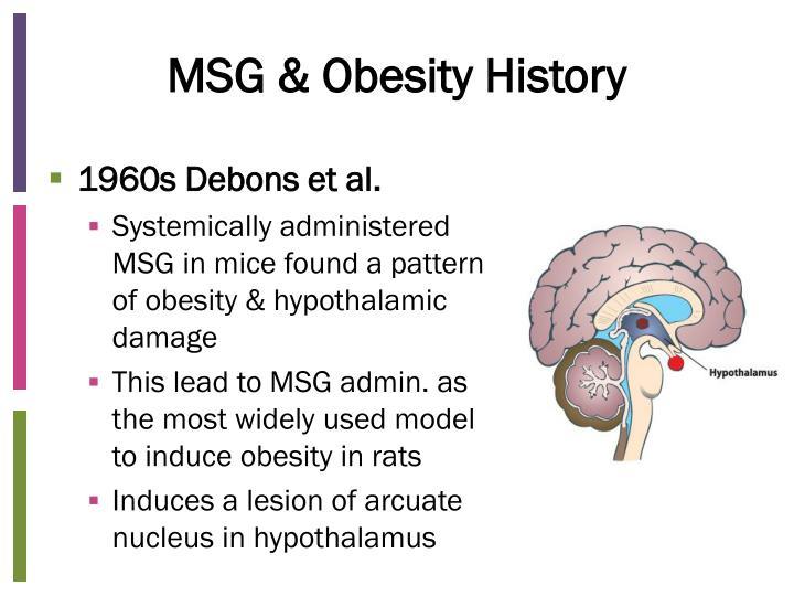 MSG & Obesity History