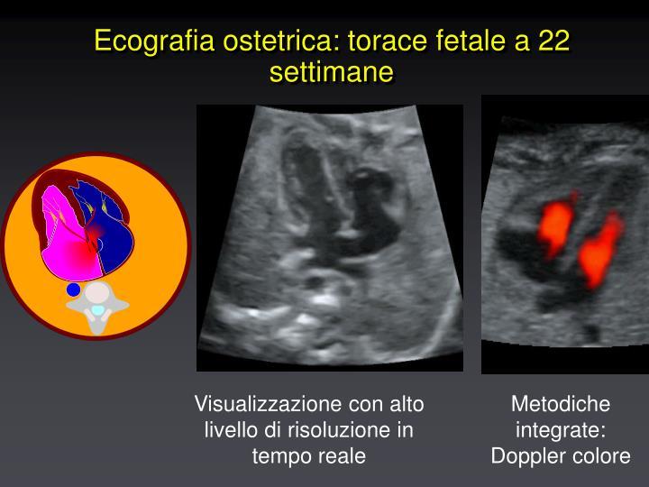 Ecografia ostetrica: torace fetale a 22 settimane