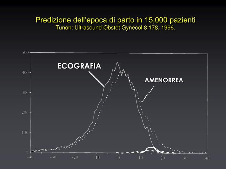 Predizione dell'epoca di parto in 15,000 pazienti